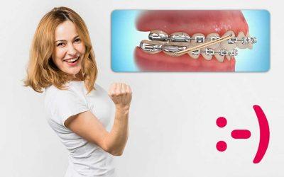 Tratamiento de Ortodoncia con Aparato Fijo (Brackets) y uso de los Elásticos Intermaxilares: ¿Qué normas debo seguir?